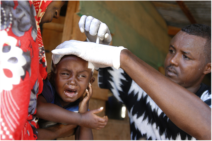 A boy at the hospital in IFO refugee camp gets a treatment.